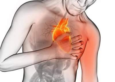 Resultado de imagen de infarto de corazon